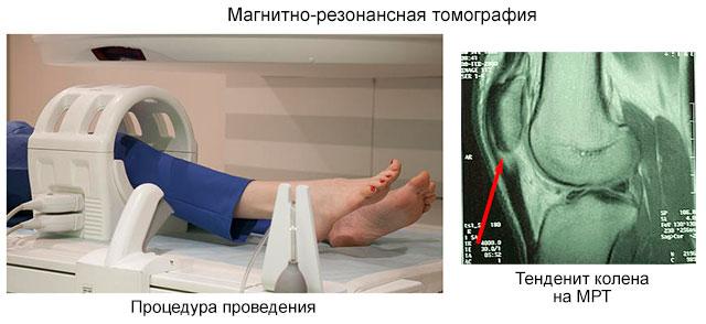 тендинит колена на МРТ