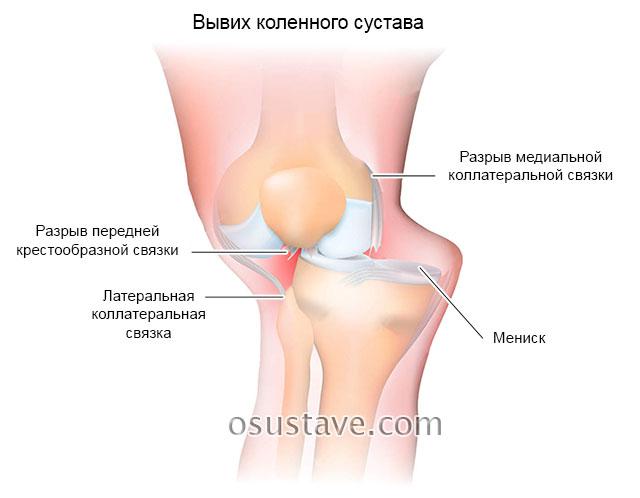 Боль на внутренней стороне колена