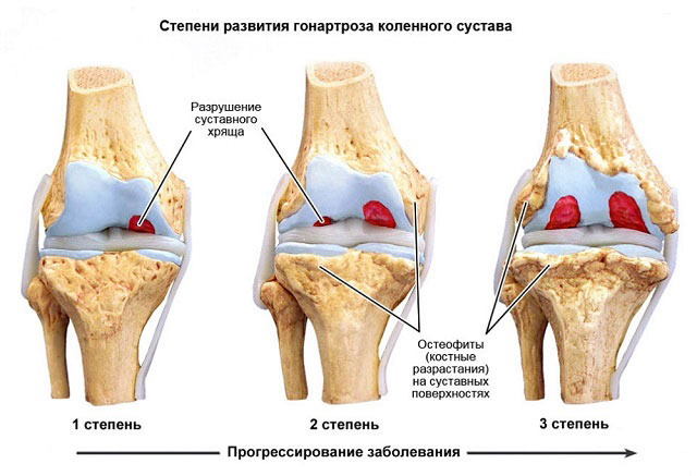 Гонартроз 1 степени коленного сустава лечение Суставы