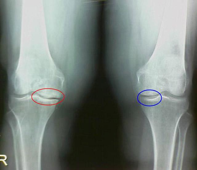 рентгенография коленного сустава при гонартрозе и нормальный коленный сустав