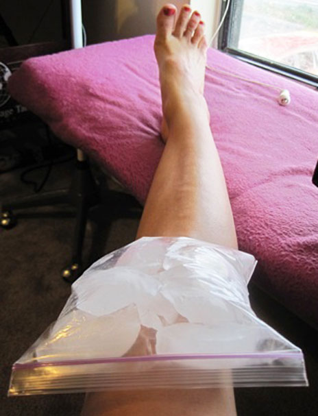 прикладывание льда к коленному суставу