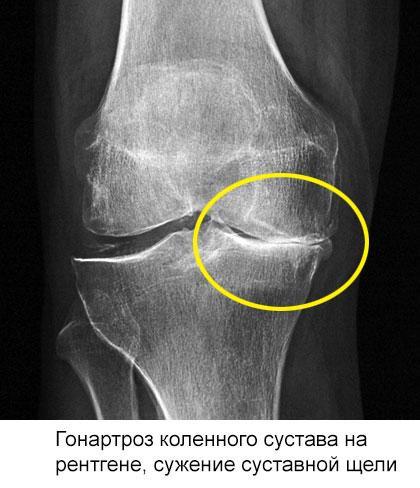 гонартроз на рентгене, сужение суставной щели