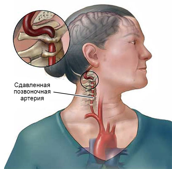 сдавление крупной позвоночной артерии