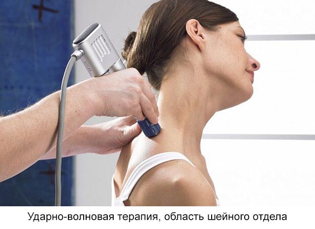 ударно-волновая терапия, область шейного отдела