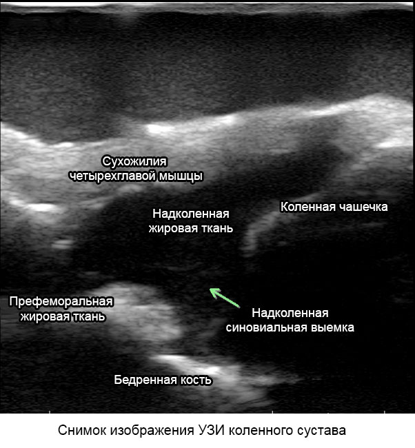 снимок ультразвукового исследования коленного сустава