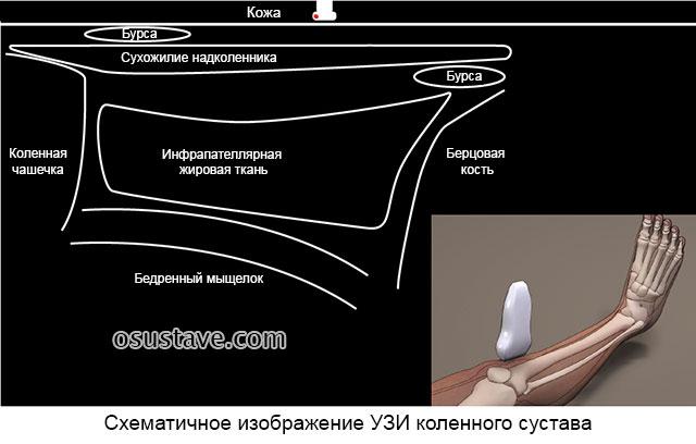 схематичное изображение ультразвукового исследования коленного сустава