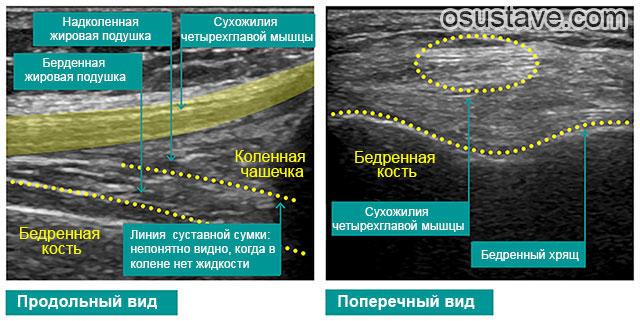 здоровый коленный сустав на УЗИ