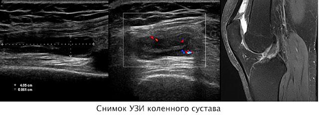 снимок УЗИ коленного сустава