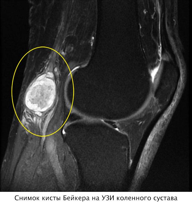 снимок кисты Бейкера на УЗИ колена
