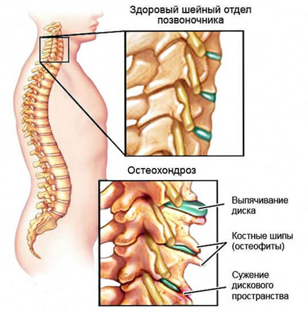 остеохондроз шейного отдела позвоночника