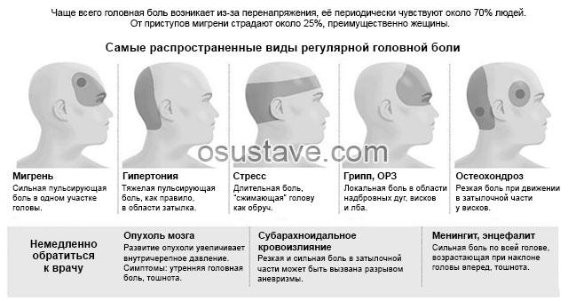 самые распространенные виды головной боли