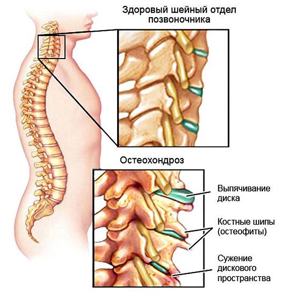 изменения при шейном остеохондрозе