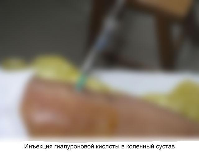 инъекция гиалуроновой кислоты в коленный сустав