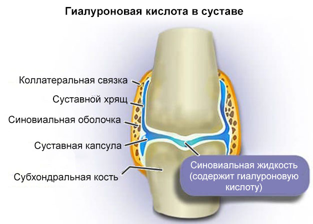 гиалуроновая кислота в суставе