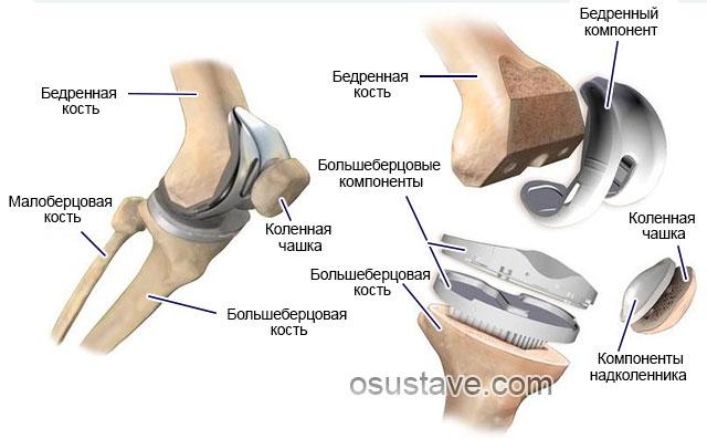 составные части эндопротеза коленного сустава