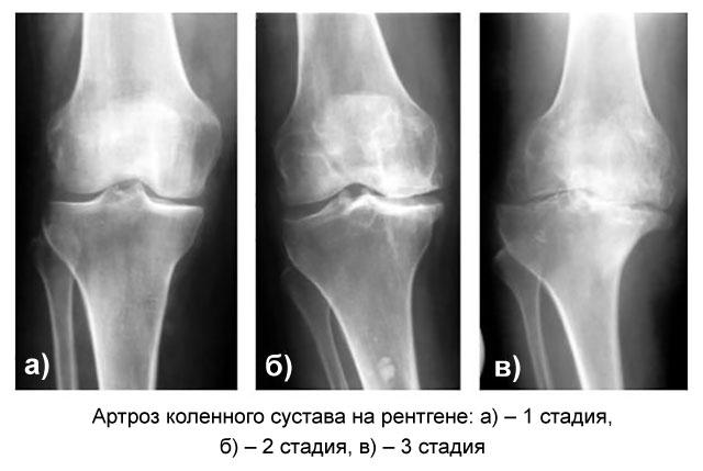 три степени артроза колена на рентгеновских снимках