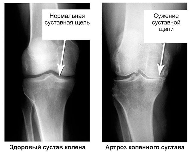 суставная щель здорового коленного сустава и пораженного артрозом на рентгене