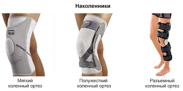 виды ортезов (наколенников) для колена