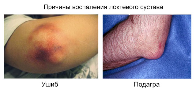 возможные причины воспаления локтевого сустава