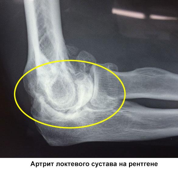артрит локтевого сустава на рентгене