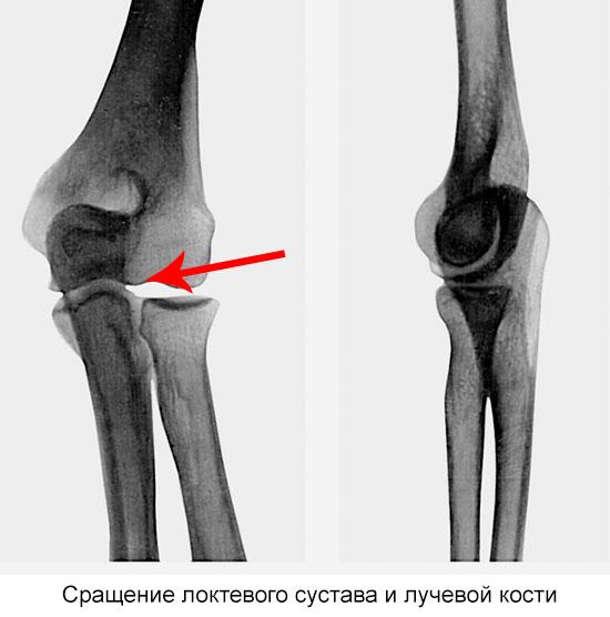 сращение костей локтевого сустава на рентгене