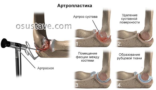 восстановление локтевого сустава с помощью артропластики