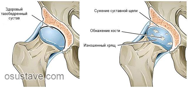 патологические изменения при коксартрозе