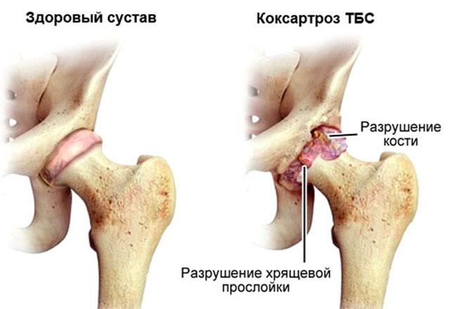 здоровый сустав и коксартроз тазобедренного сустава