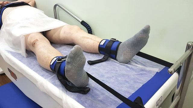ортопедическая тракция коленного сустава
