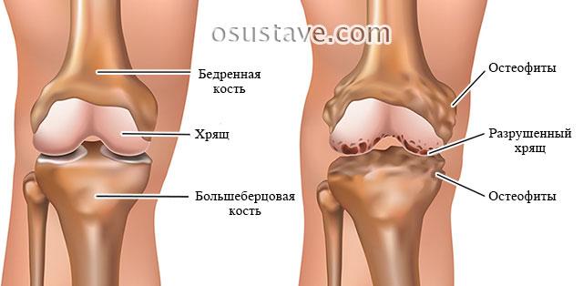норма и остеоартроз коленного сустава
