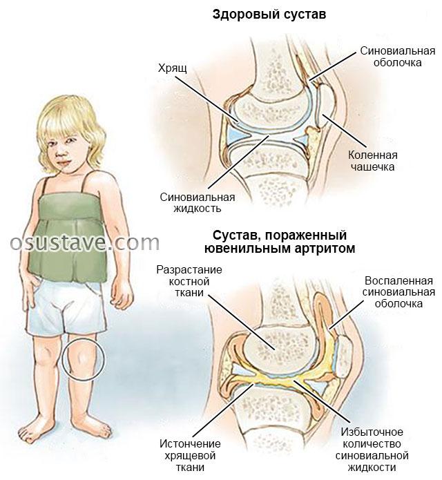 ювенильный ревматоидный артрит у маленькой девочки