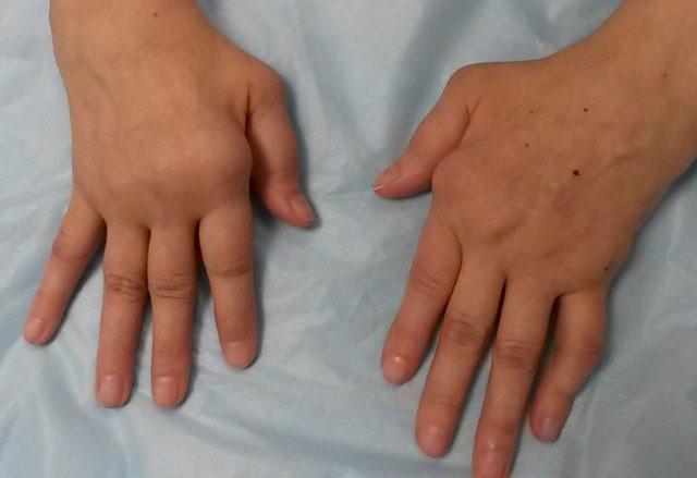 деформация суставов пальцев рук при ЮРА