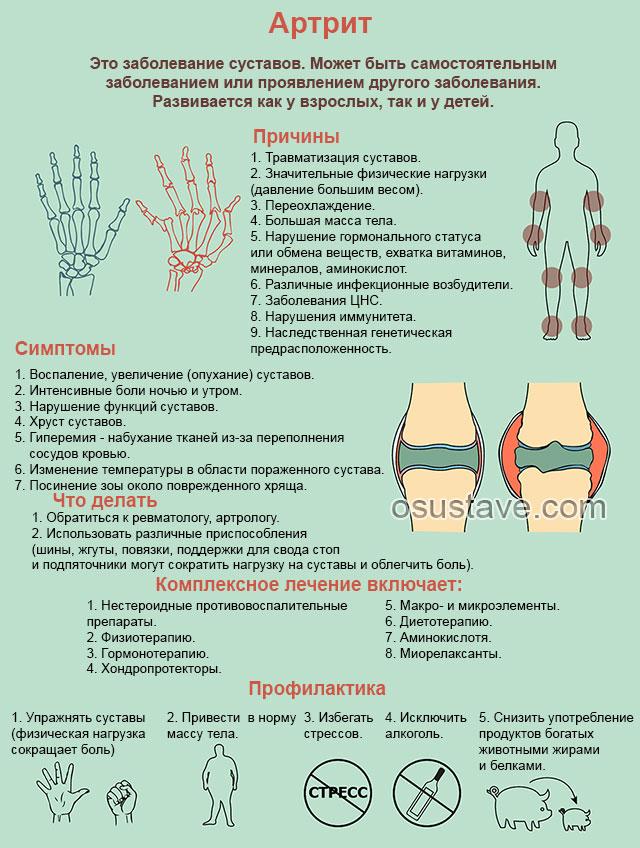 общая информация про артрит