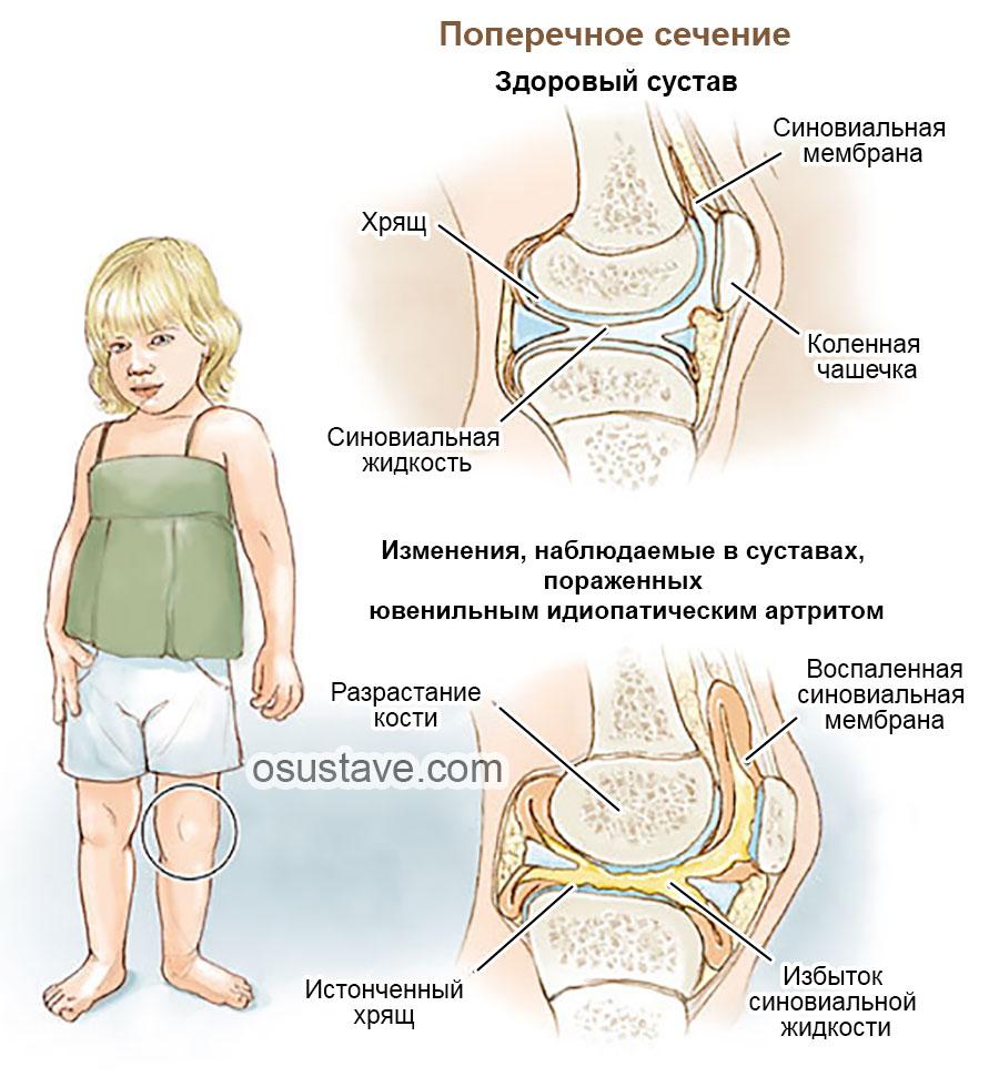 » Артрит – видове и лечение