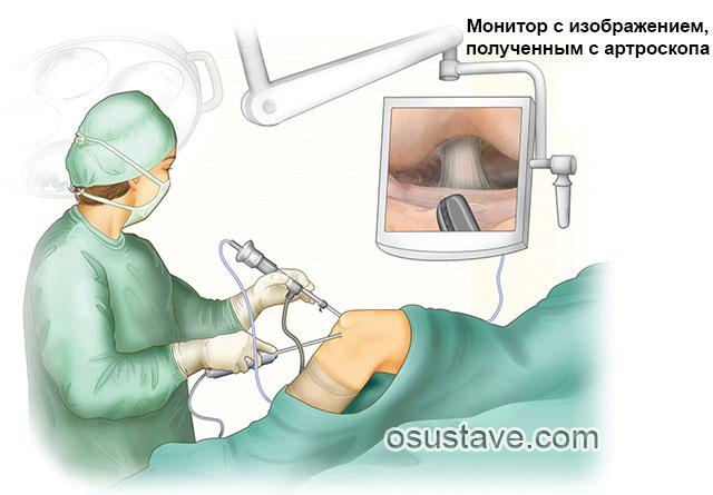 исследование коленного сустава методом артроскопии