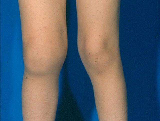 реактивный артрит, отек правого коленного сустава