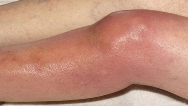 внешний вид колена, пораженного септическим артритом