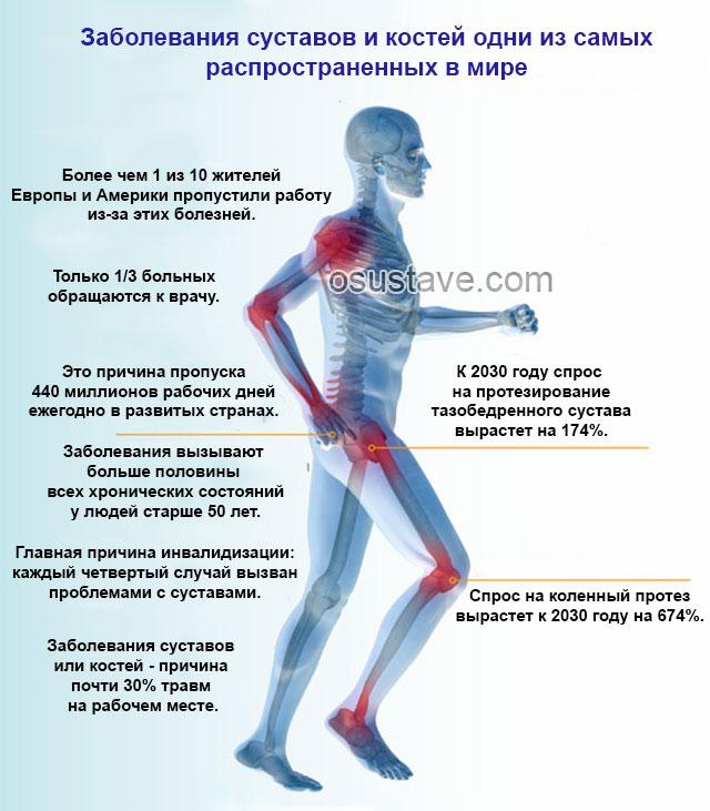 заболевания суставов и костей