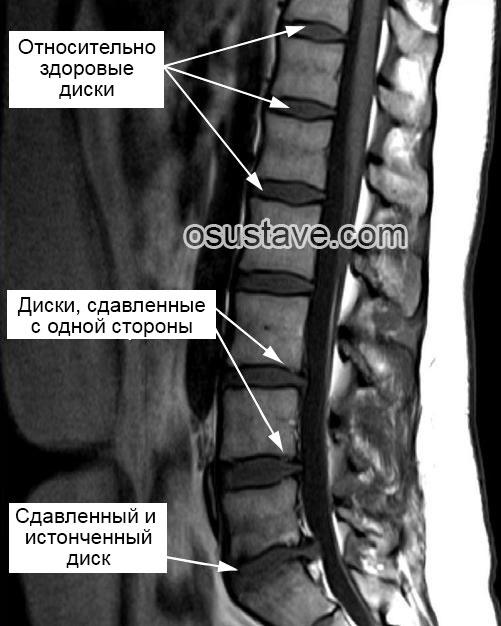 МРТ пораженного позвоночника