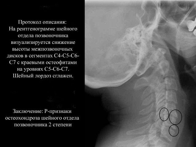 рентгенограмма при остеохондрозе позвоночника