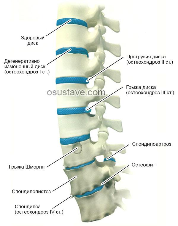 стадии остеохондроза и другие патологические изменения позвоночника