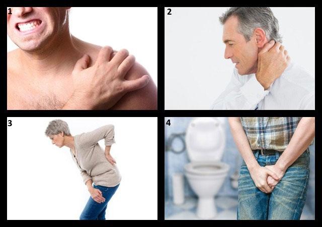 симптомы плекситов различной локализации