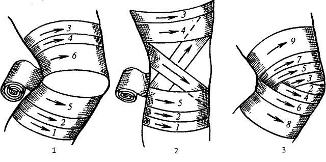 повязки на коленный сустав