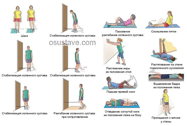 упражнения для реабилитации повреждений мениска