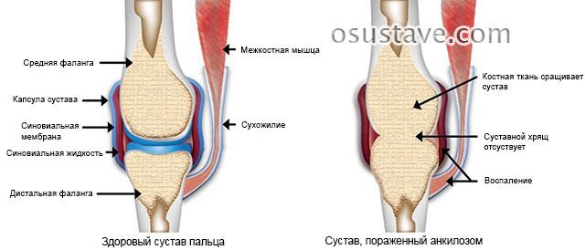 Анкилоз сустава - лечение, симптомы, причины