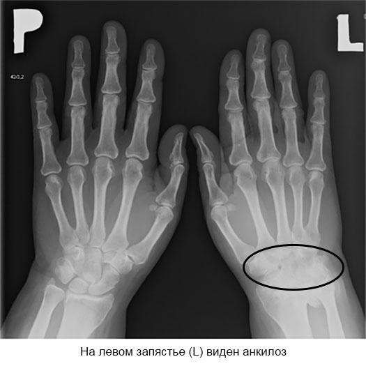 рентгенограмма анкилоза запястья