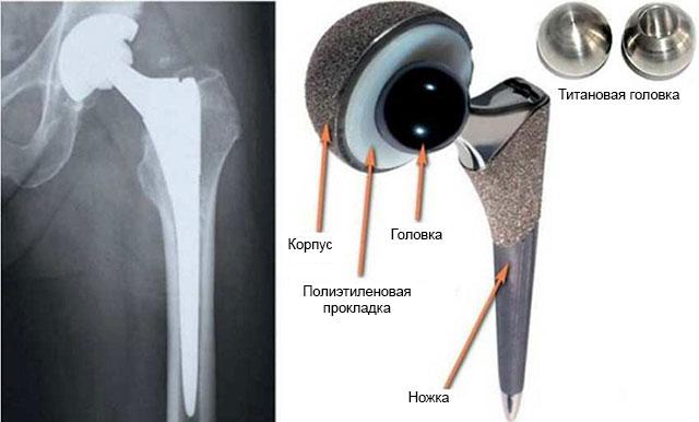 искусственный тазобедренный сустав для эндопротезирования