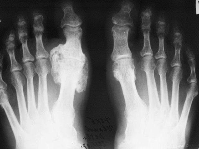 рентгеновский снимок стоп при подагре