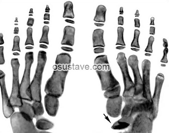 рентгенография стоп при болезни Келлера