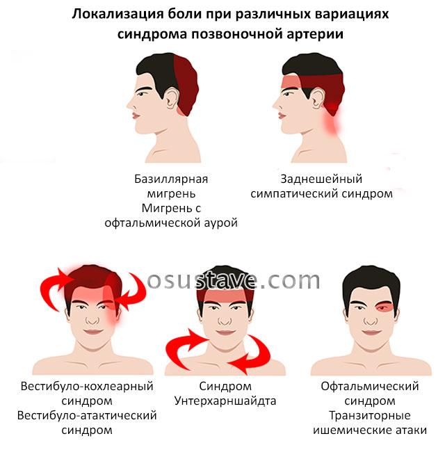 локализация головных болей